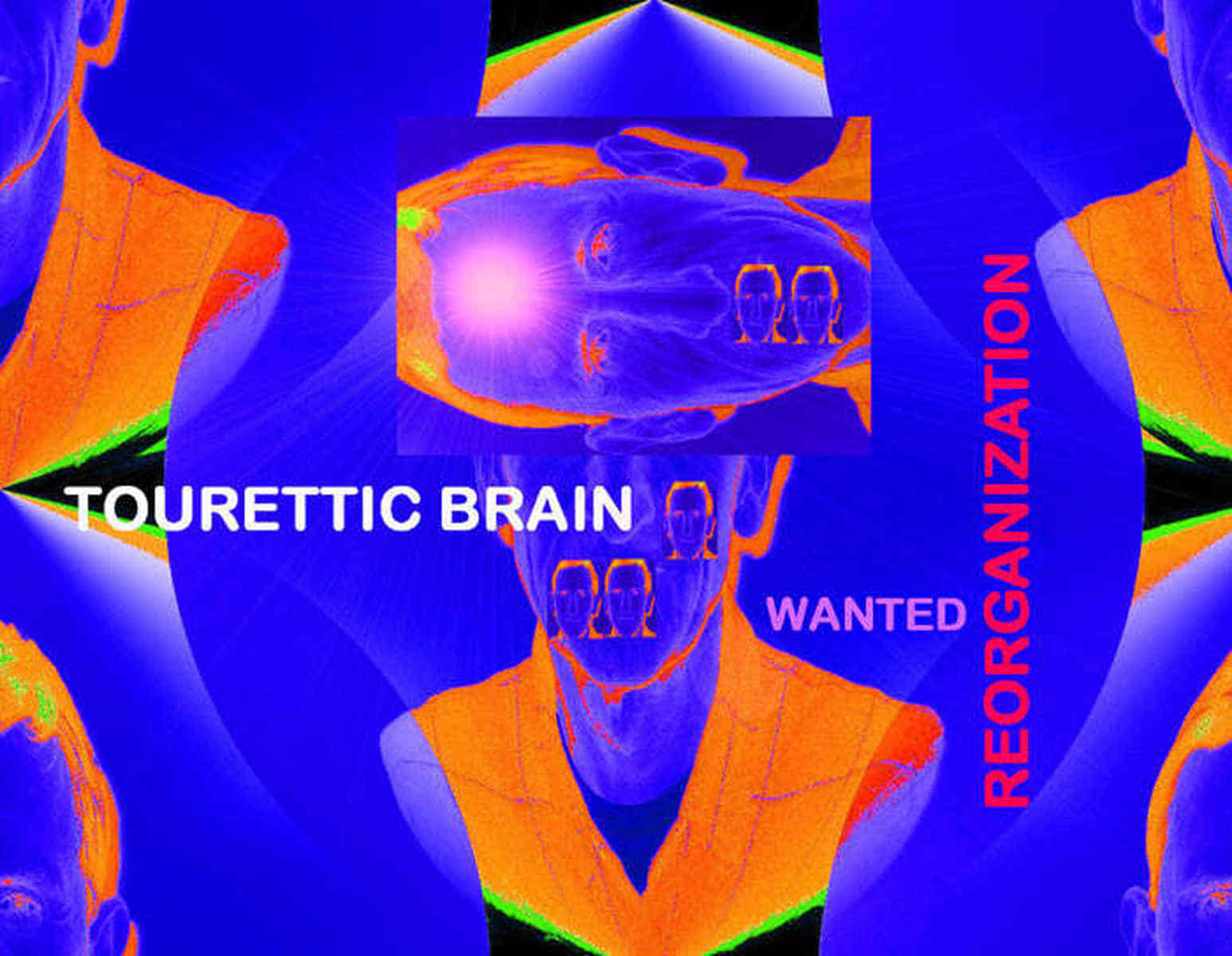 Grafik: Postkarte 03: Tourettic Brain --- Wanted: Reorganization.